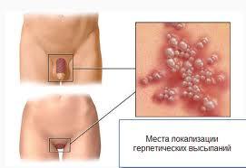 Генитальный герпес лечение у женщин и мужчин фото можно
