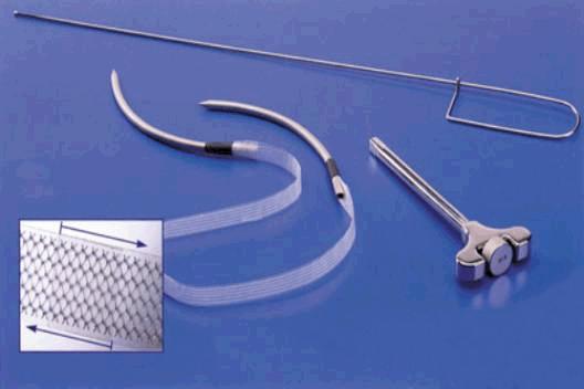 Слинговые операции TVT и TOT - цена, проведение операции